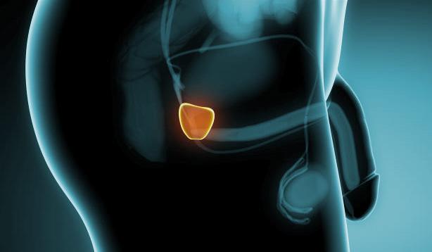 Tratamiento De Cancer De Próstata