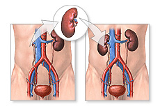 Transplante-renal