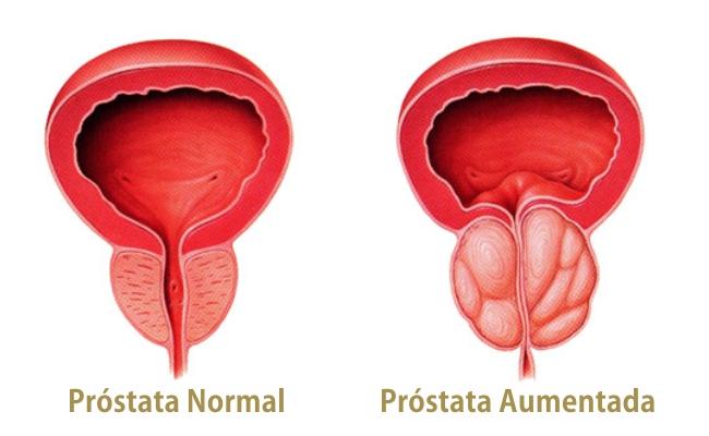 Cirugía de la próstata por vía transuretral ( RTU).