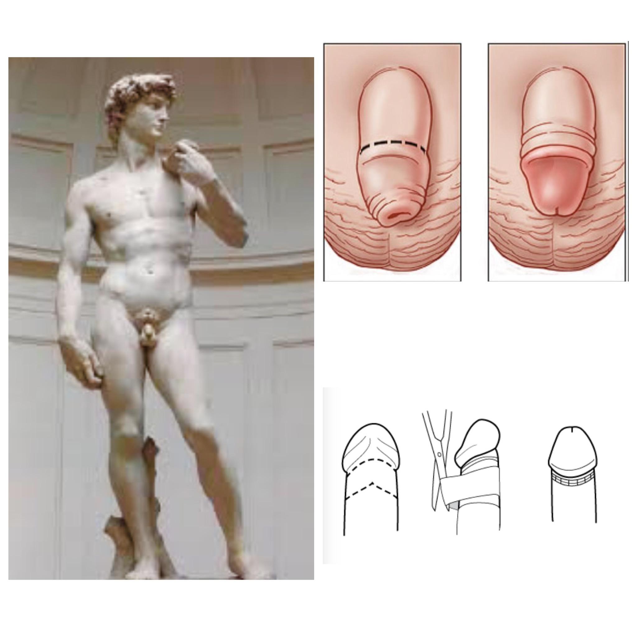 Circuncisión: Beneficios generales y sexuales.