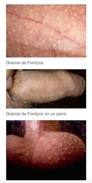 Granos o manchas de Fordyce