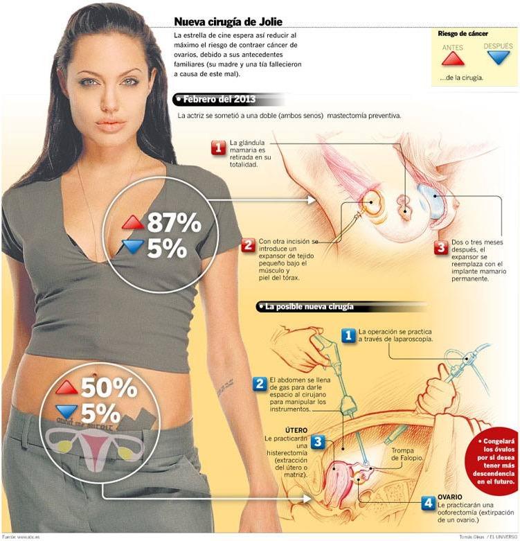 Angelina Jolie, Genes Supresores de Tumores y su Extrapolación al Cáncer de Próstata
