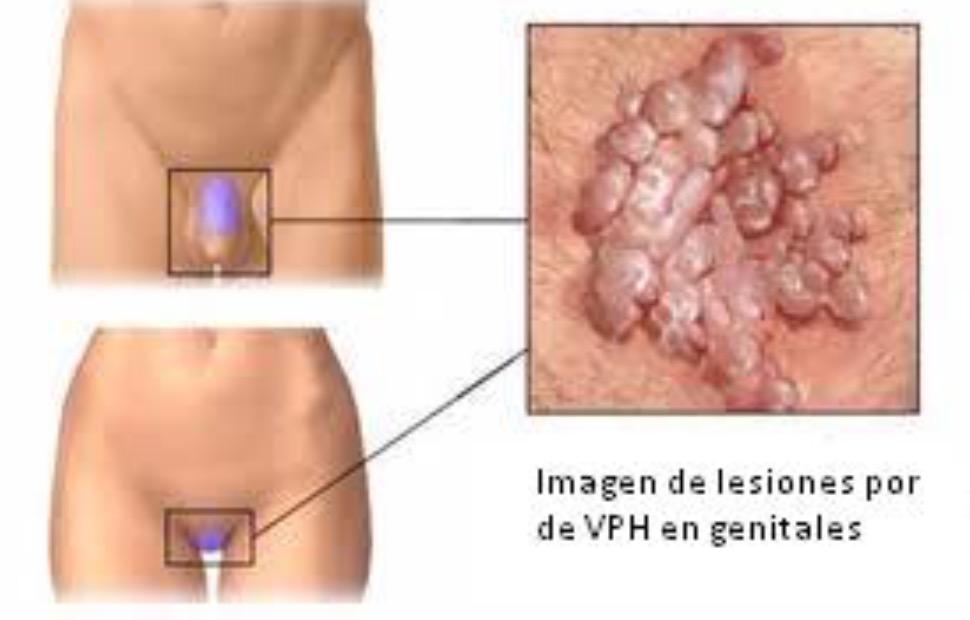 Virus Papiloma Humano: Prevención y Vacunación