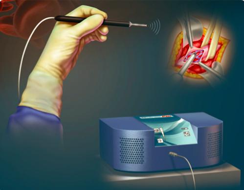 Microcirugía con doppler de Varicocele