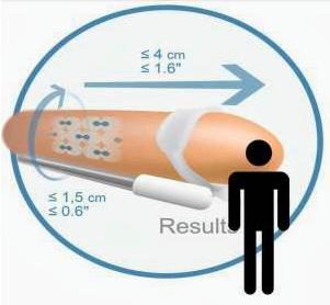 Instrumento para alargamiento no quirúrgico del órgano viril masculino