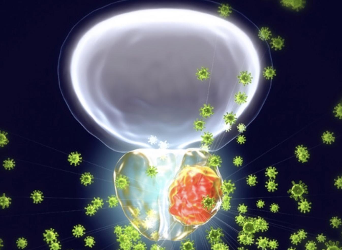 Primer Biomarcador En Sangre De Respuesta Terapéutica  Al Cáncer De Próstata Más Agresivo
